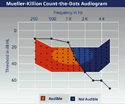 Wireless Technology In An Open Ear Solution Hearing Review