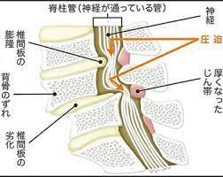 腰部 脊柱 管 狭窄 症 と は