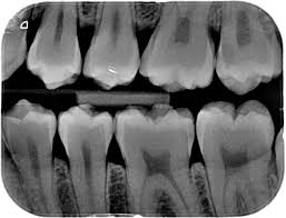 Image result for xrays in dentistry