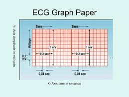 Ecg Graph Paper Under Fontanacountryinn Com