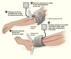 Abpi Calculation Chart Ankle Brachial Pressure Index Wikipedia