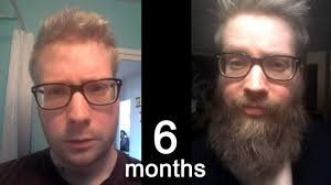 6 Month Beard Growth Time Lapse
