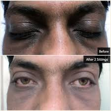 cosmetic laser treatments skin hair solutions at glow laser clinic