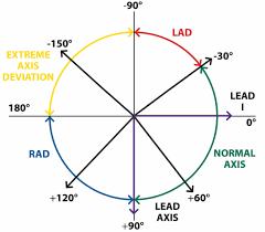 Ecg Rate Determination Chart The Basics Of Ecg Interpretation Part 2 Rate Rhythm And