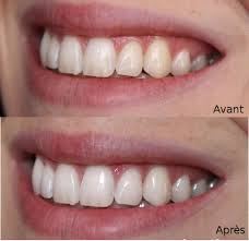 avant après usage cura sur les dents