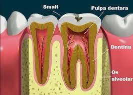 Imagini pentru scoaterea nervului dentar