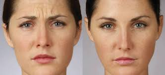 Image result for botox treatment