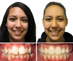 braces before and after children