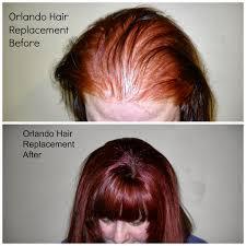 Male Pattern Baldness In Women Gorgeous Orlando Hair Salon Secrets For Hair Growth Shallamars Hair