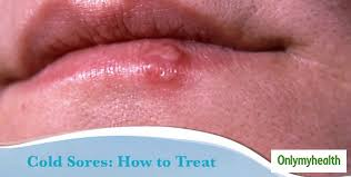 fever blisters or cold sores