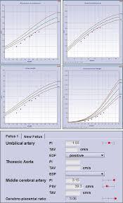 Antenatal Growth Chart Centile Lines Basic Principles Section 1 Placental Fetal Growth