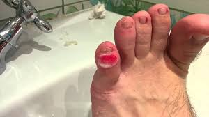 callus corn blister on little toe of both feet removal at home part 2 left foot you