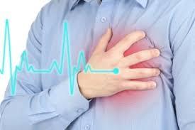 """Результат пошуку зображень за запитом """"инфаркт миокарда"""""""