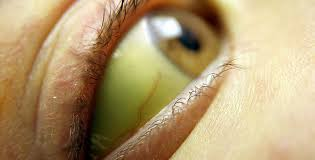 Image result for yellow skin hepatitis