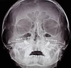 Дистракция верхней челюсти при устранении открытого прикуса и  контрольная рентгенограмма черепа пациента в аксиальной проекции после операции
