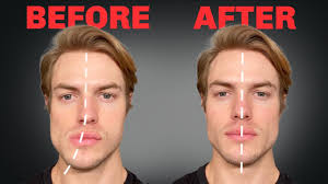 how to fix asymmetrical jaw face