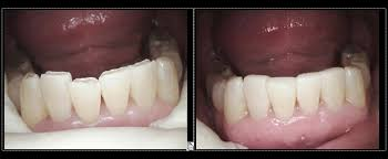 Diamond Bar Dental Severe Worn Lower Front Teeth Placed With White Fillings By Dr Chae