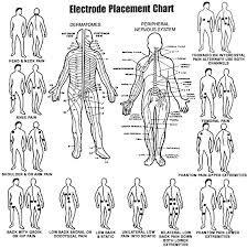 Tens Machine Pad Placement Chart Placement Of Electrodes For Tens Unit Google Search Tens