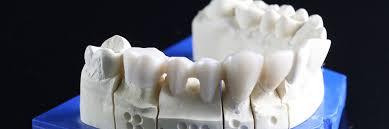 Dental Bridge | Dental Bridges in Belvidere, IL