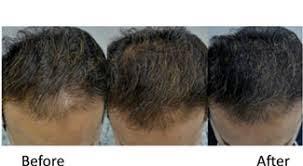 HAIR LOSS MESOTHERAPY XTRA