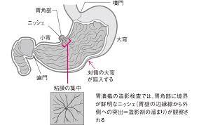 胃潰瘍十二指腸潰瘍に関するqa看護のための疾患ガイド看護roo