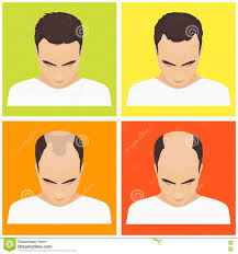 Male Pattern Baldness Stages Best Inspiration Design