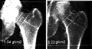 X Ray Absorption Images Of Bone Brighter Image On Left