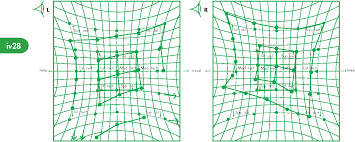 Figure 3 From Diplopia And Eye Movement Disorders