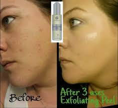 it works exfoliating peel before and after team up with overby may 2015