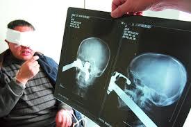 تاویر خنده داربرای رادیولوژی