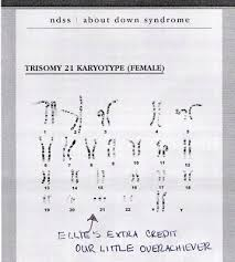 best custom paper writing services research paper about down essay on down syndrome