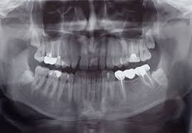 I couldn't even afford monthly payments on. Regular Surgical Tooth Extraction In Chicago Il 1st Family Dental