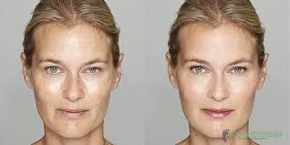 39 Particular Acupressure Facial Rejuvenation Points Chart