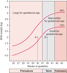 Small For Gestational Age Chart Small For Gestational Age Chart Google Search