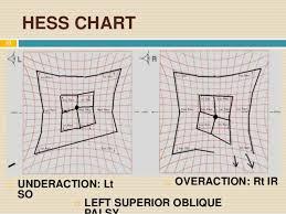 Hess Chart