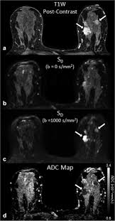 Diffusion‐weighted breast MRI: Clinical applications and emerging  techniques - Partridge - 2017 - Journal of Magnetic Resonance Imaging -  Wiley Online Library