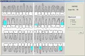 Periodontal Charting Symbols Fes Dental