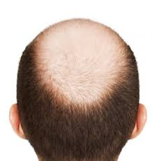 Male Pattern Baldness Stages Amazing Decoration