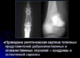 Опухоли костей и суставов Травматология Причины опухолей костей и суставов