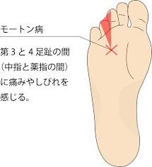 足 の 裏 親指 の 付け根 痛い