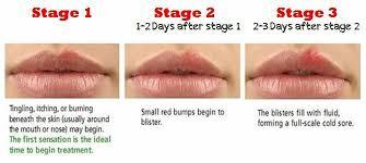 herpes on lips symptoms today cyfk