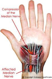 carpal tunnel pain management