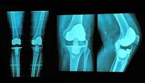 Knieschmerzen beim joggen oder beim sport gehen hingegen meist auf überlastungsreaktionen (z. Knieschmerzen Ursache Behandlung Und Ubungen Liebscher Bracht