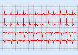Ekg Graph The Graph Electrocardiogram Heart On Paper Form Stock