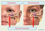 wat te doen tegen oorontsteking volwassenen