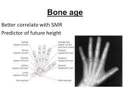 Bone Age Wrist Chart Approach To A Child With Short Stature Ppt Video Online