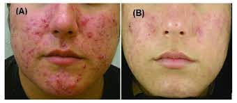 acne treatment with blue light and
