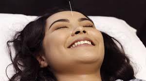 A acupuntura no ocidente - SciELO
