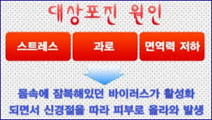 Image result for 대상포진