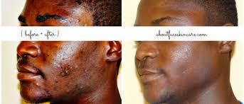 acne african american skin philadelphia